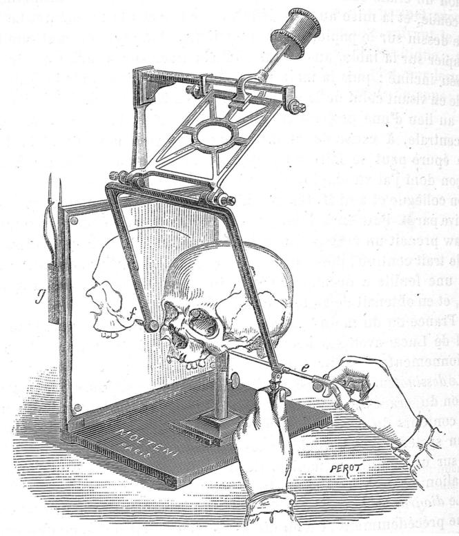 80 L'appareil désigné comme stéréographe de Broca.png